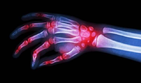 Новый препарат от артрита показывает большие успехи в испытаниях на людях