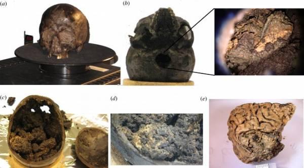 Ученые впервые нашли сохранившийся человеческий мозг возрастом 2600 лет