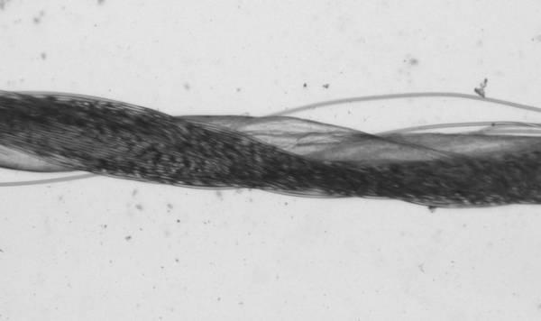 Врачи научились вязать ценные искусственные артерии из коллагена и синтетических волокон