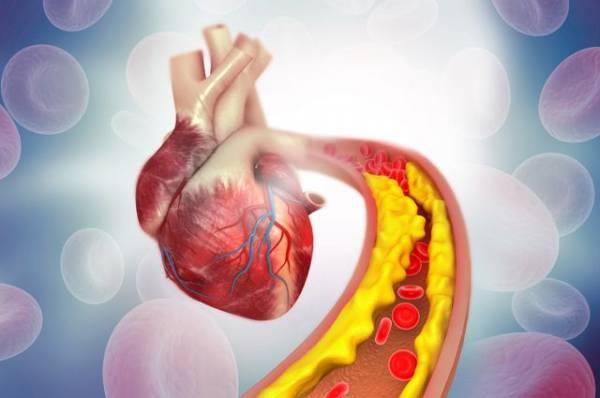 Холестерин вам в помощь, но только полезный. Как приводить его в норму?