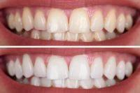 Голливудская улыбка. Как отбелить зубы дома?
