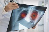 Нехватка воздуха. При каких заболеваниях человеку трудно дышать?
