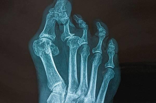 Незваные кости. Что такое «болезнь второго скелета» и как ее диагностируют