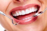 Как вернуть красивую улыбку? Пять причин для имплантации зубов