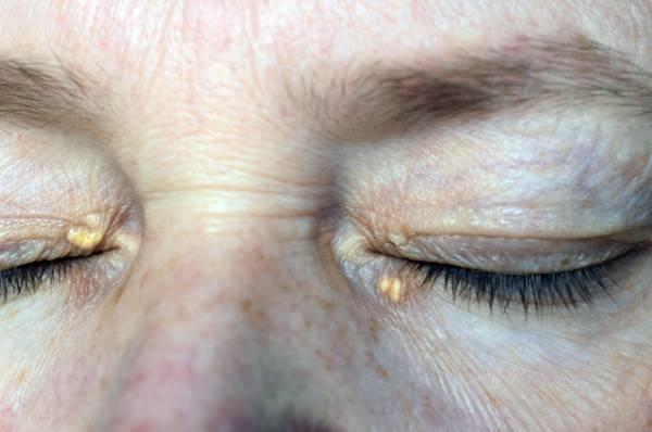 Какие признаки высокого холестерина можно распознать по глазам?