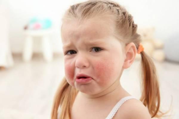Тело в сыпи. Что такое потница и как ее избежать?