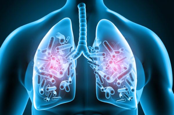 Микобактериоз легких. Чем он опасен и как его лечить?