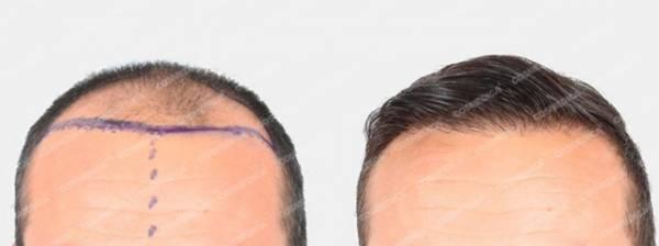 Пересадка волос в Турции. Ответы на 10 самых популярных вопросов