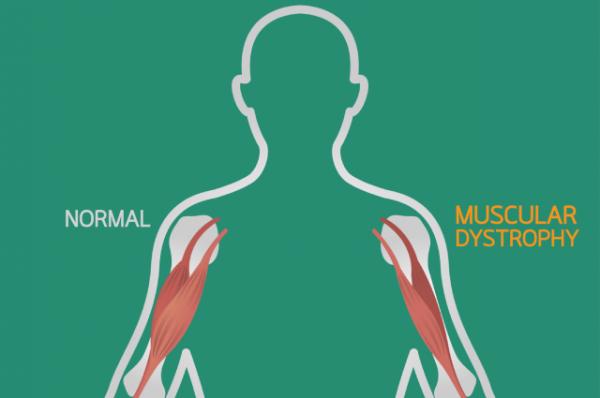 Мышца под прицелом. Что собой представляет дистрофия Дюшенна?